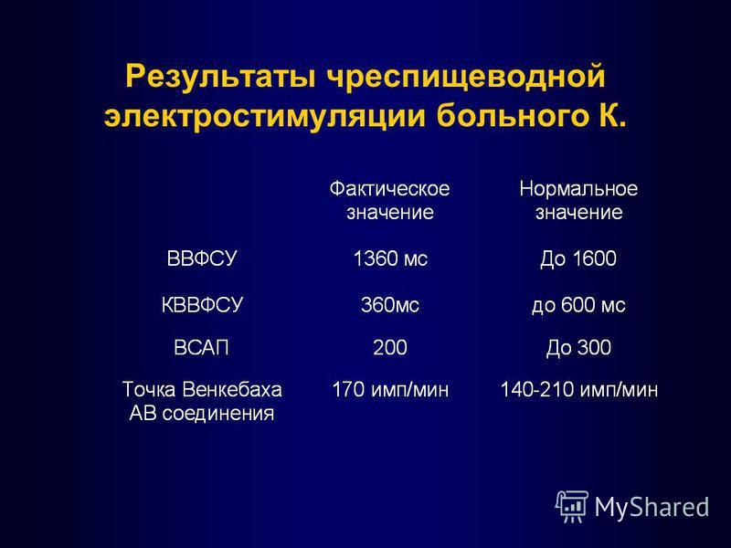 Результаты чреспищеводной электростимуляции больного К.