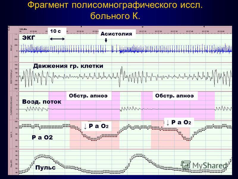 Фрагмент полисомнографического иссл. больного К. ЭКГ Движения гр. клетки Возд. поток Р а O2 Пульс Асистолия Обстр. апноэ Р а О 2 10 с