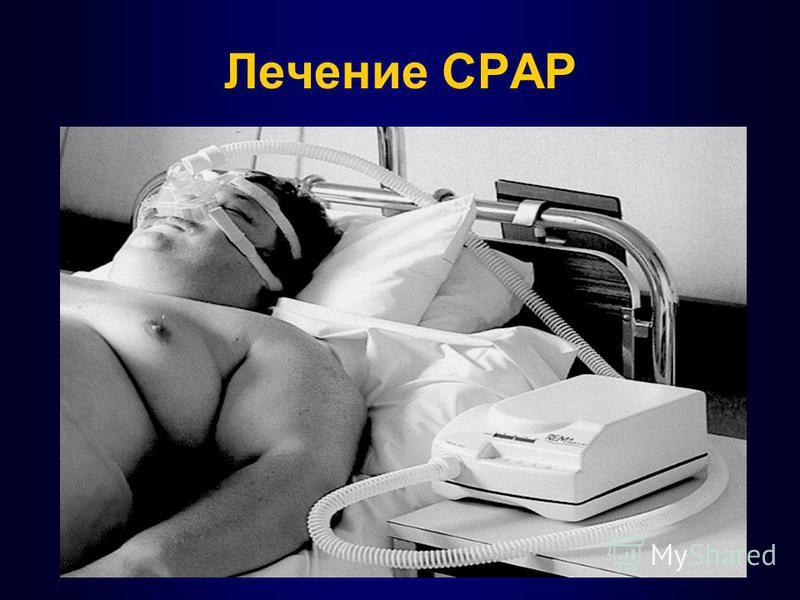 Лечение СPAP