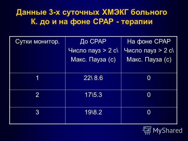 Данные 3-х суточных ХМЭКГ больного К. до и на фоне СРАР - терапии Сутки монитор.До СРАР Число пауз > 2 c\ Макс. Пауза (с) На фоне СРАР Число пауз > 2 c\ Макс. Пауза (с) 122\ 8.60 217\5.30 319\8.20