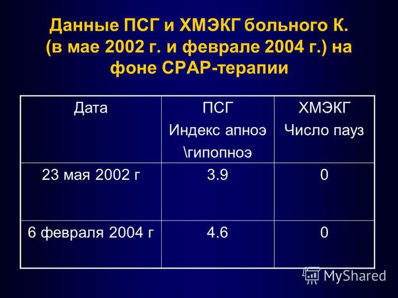 Данные ПСГ и ХМЭКГ больного К. (в мае 2002 г. и феврале 2004 г.) на фоне СРАР-терапии ДатаПСГ Индекс апноэ \гипопноэ ХМЭКГ Число пауз 23 мая 2002 г 3.90 6 февраля 2004 г 4.60