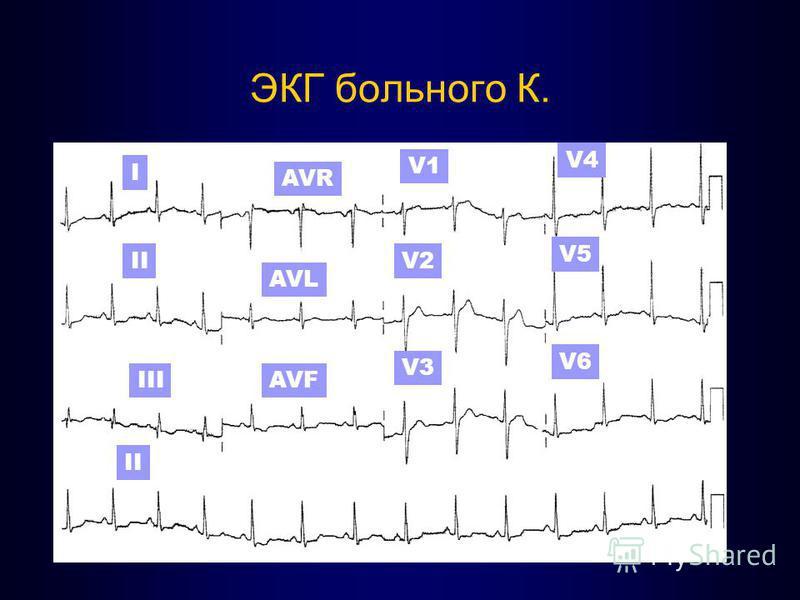 ЭКГ больного К. I II III AVR II AVF AVL V1 V2 V3 V4 V5 V6