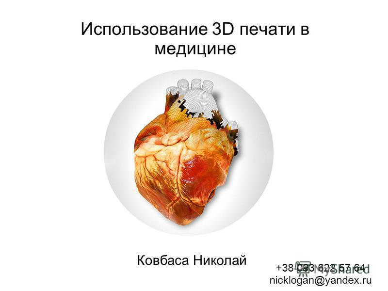 Использование 3D печати в медицине Ковбаса Николай +38 093 622 57 64 nicklogan@yandex.ru