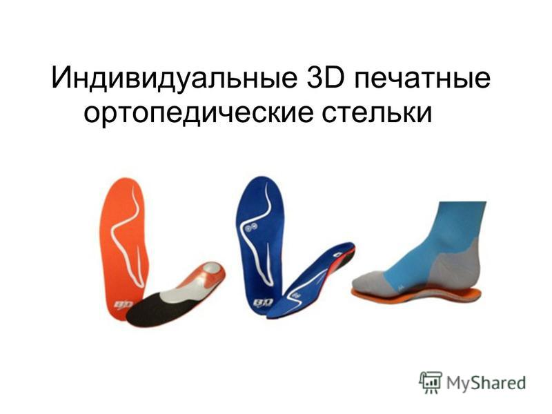 Индивидуальные 3D печатные ортопедические стельки