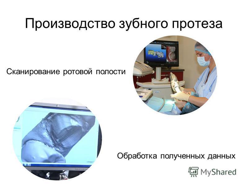 Производство зубного протеза Сканирование ротовой полости Обработка полученных данных