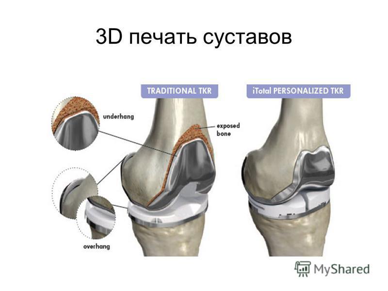 3D печать суставов