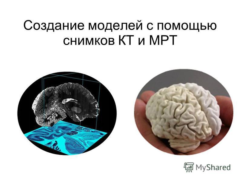 Создание моделей с помощью снимков КТ и МРТ