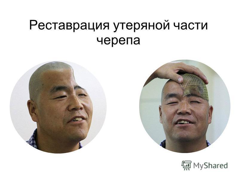 Реставрация утерянной части черепа