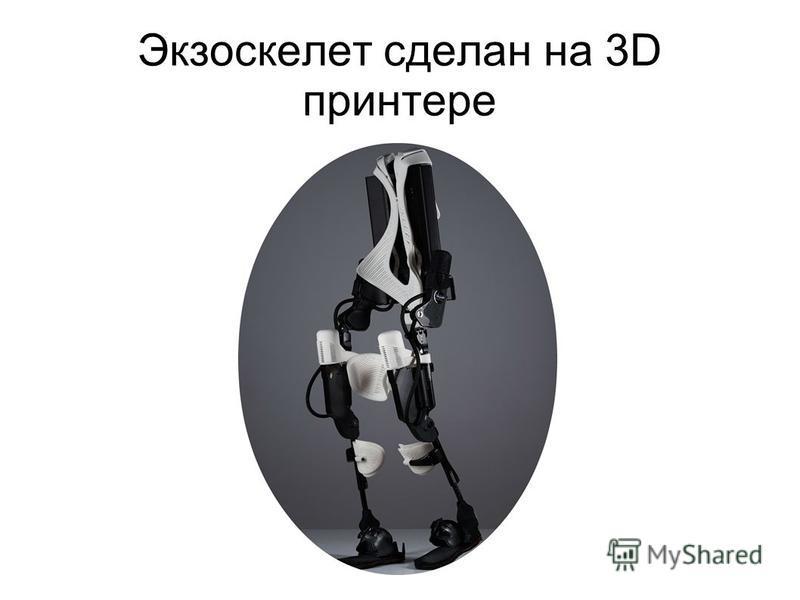 Экзоскелет сделан на 3D принтере