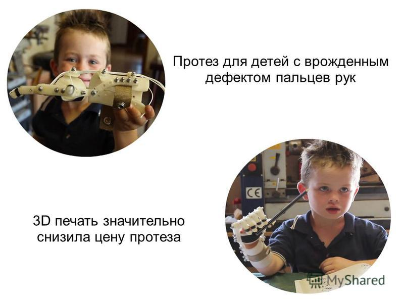 Протез для детей с врожденным дефектом пальцев рук 3D печать значительно снизила цену протеза
