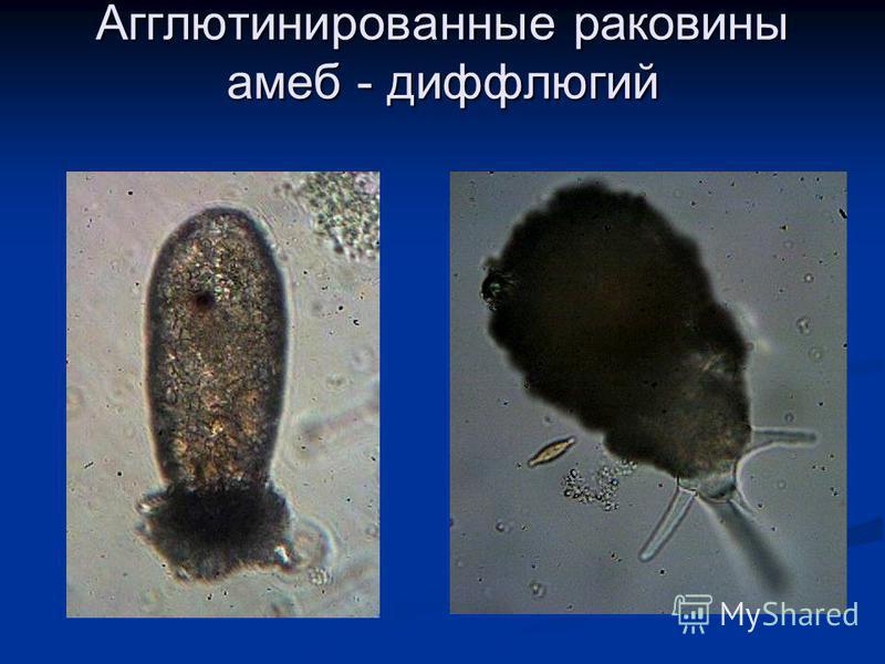 Агглютинированные раковины амеб - диффлюгий