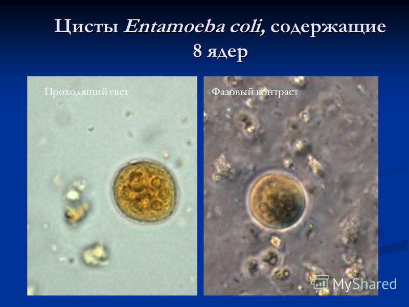 Цисты Entamoeba coli, содержащие 8 ядер Проходящий свет Фазовый контраст