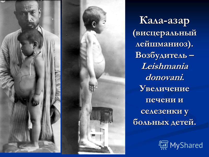 Кала-азар (висцеральный лейшманиоз). Возбудитель – Leishmania donovani. Увеличение печени и селезенки у больных детей.