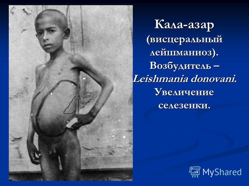 Кала-азар (висцеральный лейшманиоз). Возбудитель – Leishmania donovani. Увеличение селезенки.