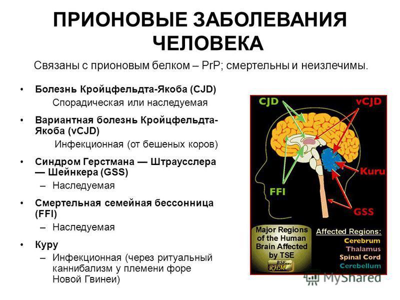 ПРИОНОВЫЕ ЗАБОЛЕВАНИЯ ЧЕЛОВЕКА Болезнь Кройцфельдта-Якоба (CJD) Спорадическая или наследуемая Вариантная болезнь Кройцфельдта- Якоба (vCJD) Инфекционная (от бешеных коров) Синдром Герстмана Штраусслера Шейнкера (GSS) –Наследуемая Смертельная семейная