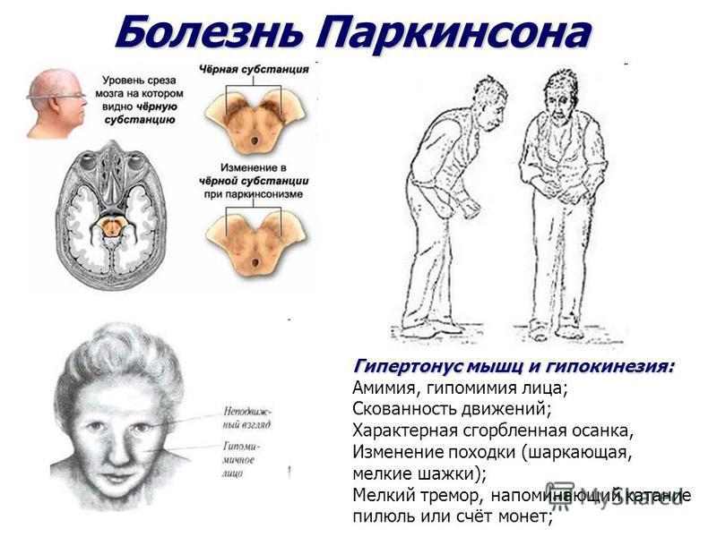 Болезнь Паркинсона Гипертонус мышц и гипокинезия: Гипертонус мышц и гипокинезия: Амимия, гипомимия лица; Скованность движений; Характерная сгорбленная осанка, Изменение походки (шаркающая, мелкие шажки); Мелкий тремор, напоминающий катание пилюль или
