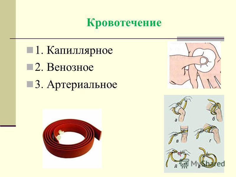 Кровотечение 1. Капиллярное 2. Венозное 3. Артериальное