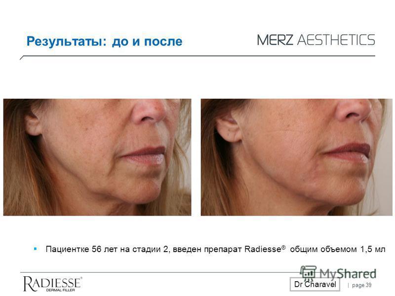 | page 39 Dr Charavel Результаты: до и после Пациентке 56 лет на стадии 2, введен препарат Radiesse ® общим объемом 1,5 мл