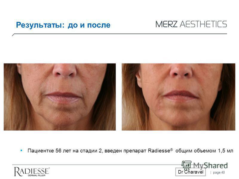 | page 40 Dr Charavel Пациентке 56 лет на стадии 2, введен препарат Radiesse ® общим объемом 1,5 мл Результаты: до и после