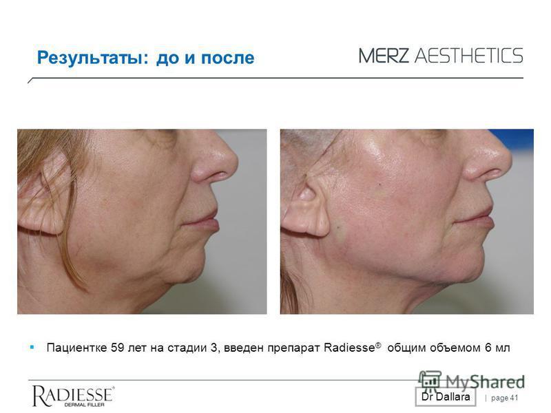 | page 41 Dr Dallara Результаты: до и после Пациентке 59 лет на стадии 3, введен препарат Radiesse ® общим объемом 6 мл