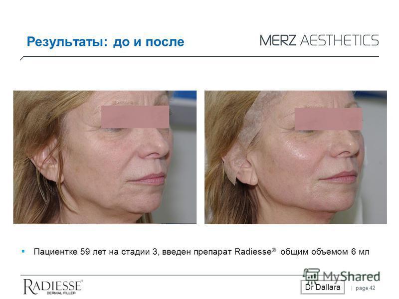 | page 42 Dr Dallara Результаты: до и после Пациентке 59 лет на стадии 3, введен препарат Radiesse ® общим объемом 6 мл
