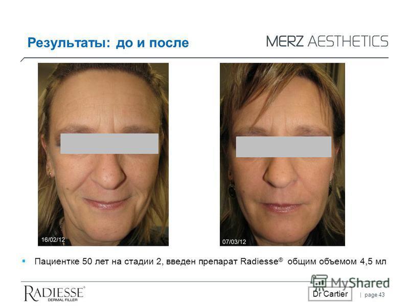 | page 43 Dr Cartier Пациентке 50 лет на стадии 2, введен препарат Radiesse ® общим объемом 4,5 мл Результаты: до и после