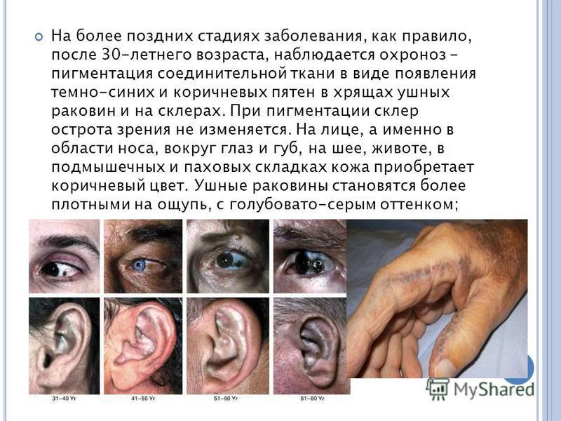 На более поздних стадиях заболевания, как правило, после 30-летнего возраста, наблюдается охроноз - пигментация соединительной ткани в виде появления темно-синих и коричневых пятен в хрящах ушных раковин и на склерах. При пигментации склер острота зр