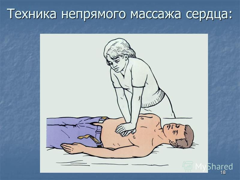 18 Техника непрямого массажа сердца: