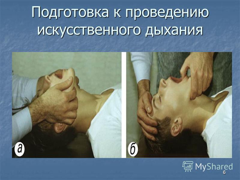 6 Подготовка к проведению искусственного дыхания