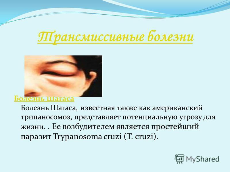 Трансмиссивные болезни Болезнь Шагаса Болезнь Шагаса Болезнь Шагаса, известная также как американский трипаносомоз, представляет потенциальную угрозу для жизни.. Ее возбудителем является простейший паразит Trypanosoma cruzi (T. cruzi).