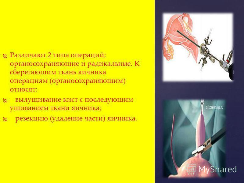 Различают 2 типа операций: органосохраняющие и радикальные. К сберегающим ткань яичника операциям (органосохраняющим) относят: вылущивание кист с последующим ушиванием ткани яичника; резекцию (удаление части) яичника.