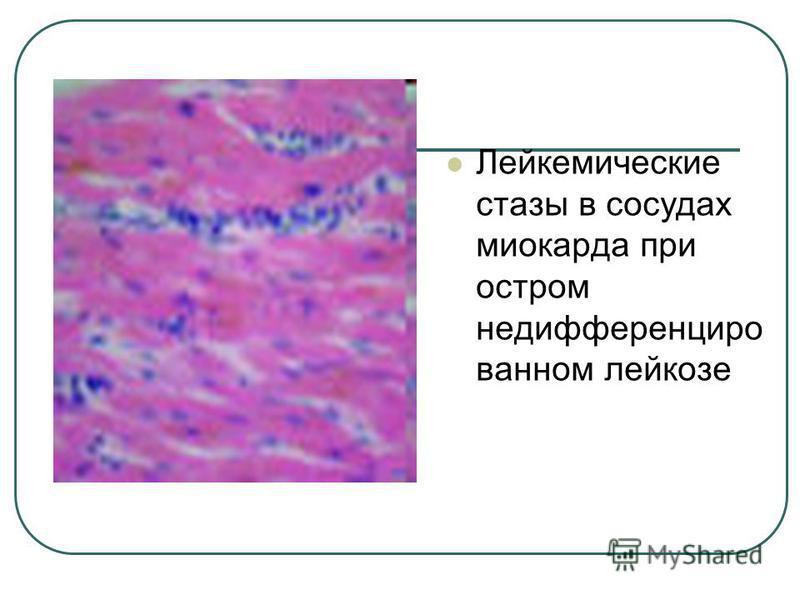Лейкемические стазы в сосудах миокарда при остром не дифференцированном лейкозе