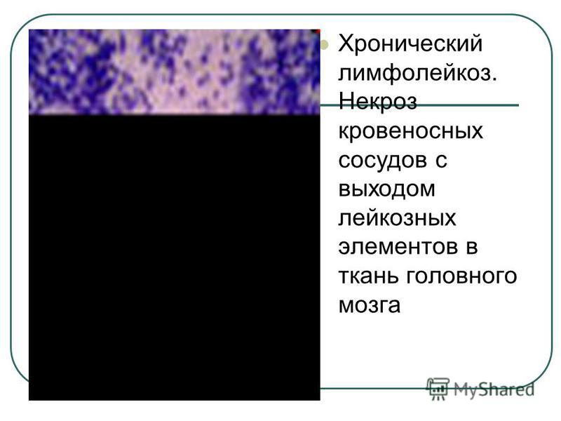 Хронический лимфолейкоз. Некроз кровеносных сосудов с выходом лейкозных элементов в ткань головного мозга