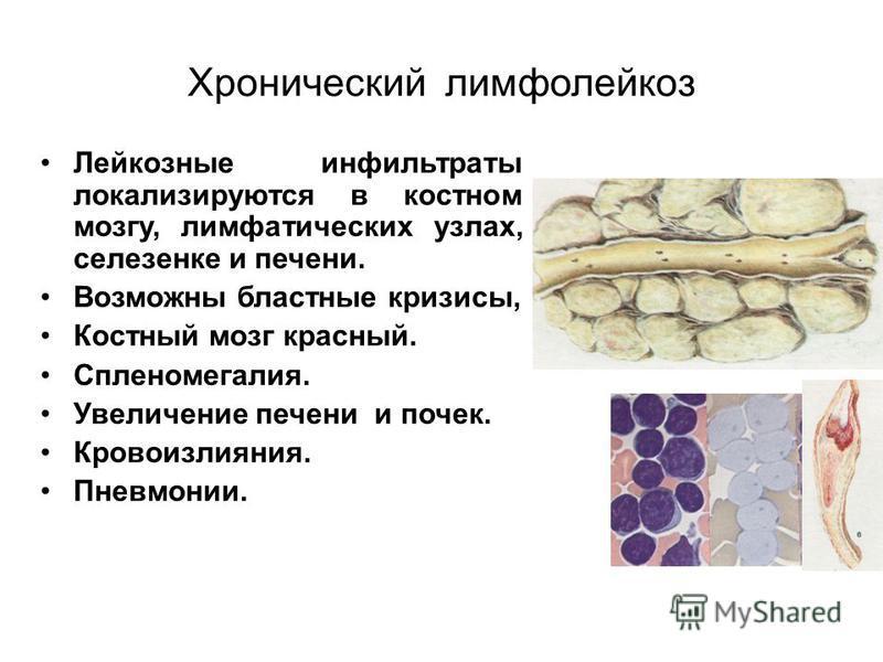 Хронический лимфолейкоз Лейкозные инфильтраты локализируются в костном мозгу, лимфатических узлах, селезенке и печени. Возможны бластные кризисы, Костный мозг красный. Спленомегалия. Увеличение печени и почек. Кровоизлияния. Пневмонии.