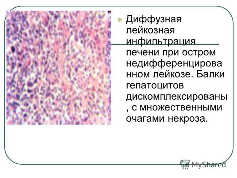 Диффузная лейкозная инфильтрация печени при остром не дифференцированном лейкозе. Балки гепатоцитов дискомплексированы, с множественными очагами некроза.