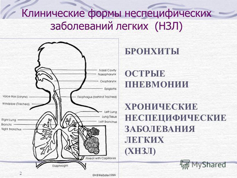 2 Клинические формы неспецифических заболеваний легких (НЗЛ) БРОНХИТЫ ОСТРЫЕ ПНЕВМОНИИ ХРОНИЧЕСКИЕ НЕСПЕЦИФИЧЕСКИЕ ЗАБОЛЕВАНИЯ ЛЕГКИХ (ХНЗЛ)