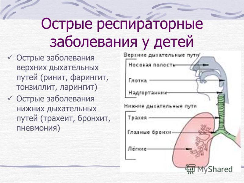 Острые респираторные заболевания у детей Острые заболевания верхних дыхательных путей (ринит, фарингит, тонзиллит, ларингит) Острые заболевания нижних дыхательных путей (трахеит, бронхит, пневмония)