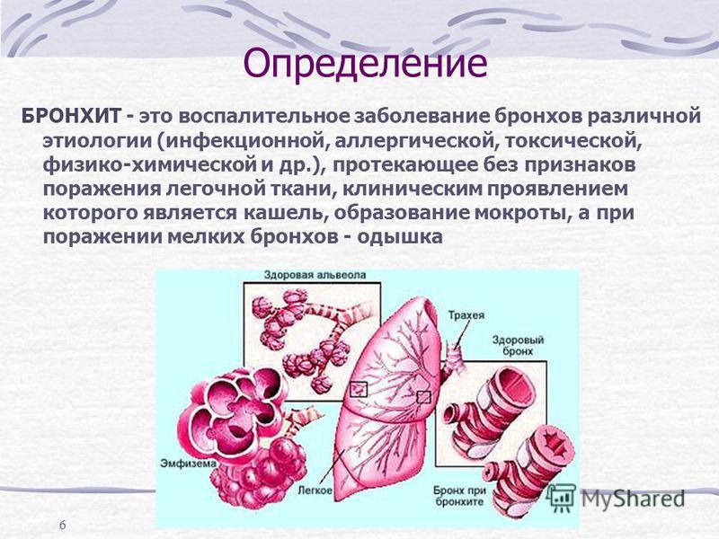 6 Определение БРОНХИТ - это воспалительное заболевание бронхов различной этиологии (инфекционной, аллергической, токсической, физико-химической и др.), протекающее без признаков поражения легочной ткани, клиническим проявлением которого является каше