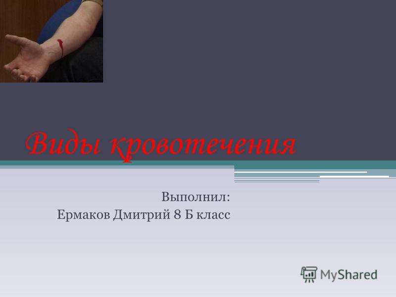 Виды кровотечения Выполнил: Ермаков Дмитрий 8 Б класс