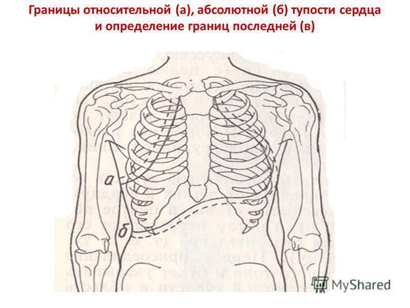 Границы относительной (а), абсолютной (б) тупости сердца и определение границ последней (в)
