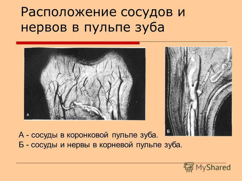Расположение сосудов и нервов в пульпе зуба А - сосуды в коронковой пульпе зуба. Б - сосуды и нервы в корневой пульпе зуба.