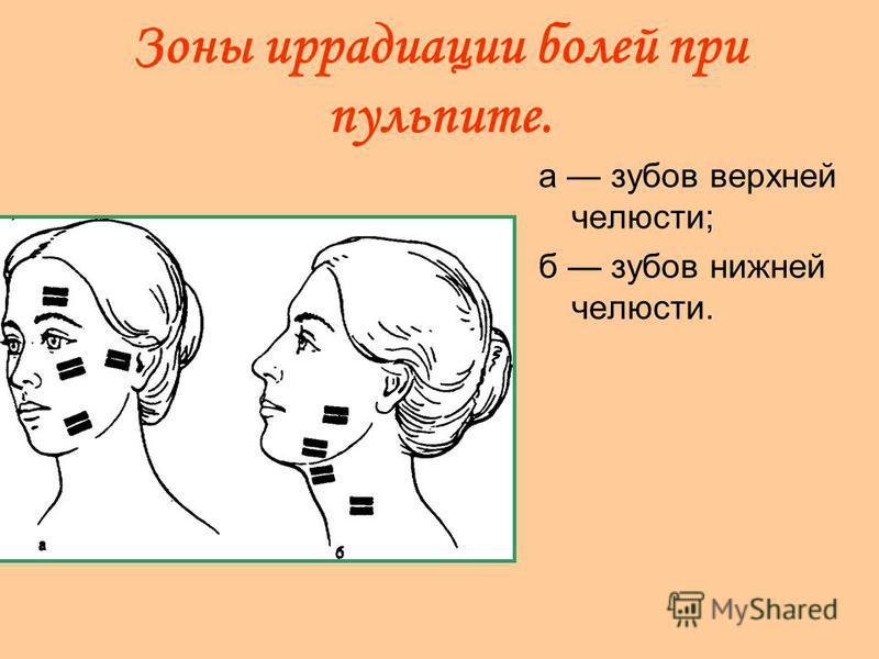 Зоны иррадиации болей при пульпите. а зубов верхней челюсти; б зубов нижней челюсти.