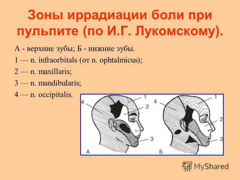 Зоны иррадиации боли при пульпите (по И.Г. Лукомскому). А - верхние зубы; Б - нижние зубы. 1 n. infraorbitals (от n. ophtalmicus); 2 n. maxillaris; 3 n. mandibularis; 4 n. occipitalis.