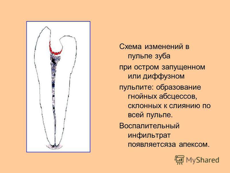 Схема изменений в пульпе зуба при остром запущенном или диффузном пульпите: образование гнойных абсцессов, склонных к слиянию по всей пульпе. Воспалительный инфильтрат появляется за апексом.