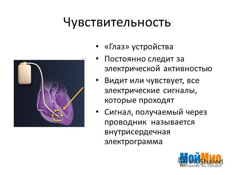Чувствительность «Глаз» устройства Постоянно следит за электрической активностью Видит или чувствует, все электрические сигналы, которые проходят Сигнал, получаемый через проводник называется внутрисердечная электрограмма