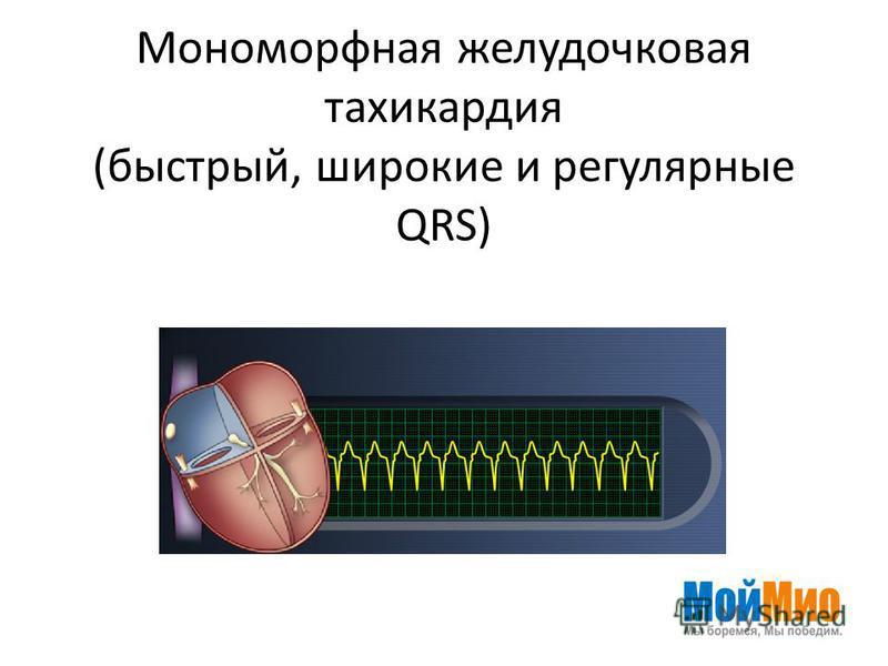 Мономорфная желудочковая тахикардия (быстрый, широкие и регулярные QRS)