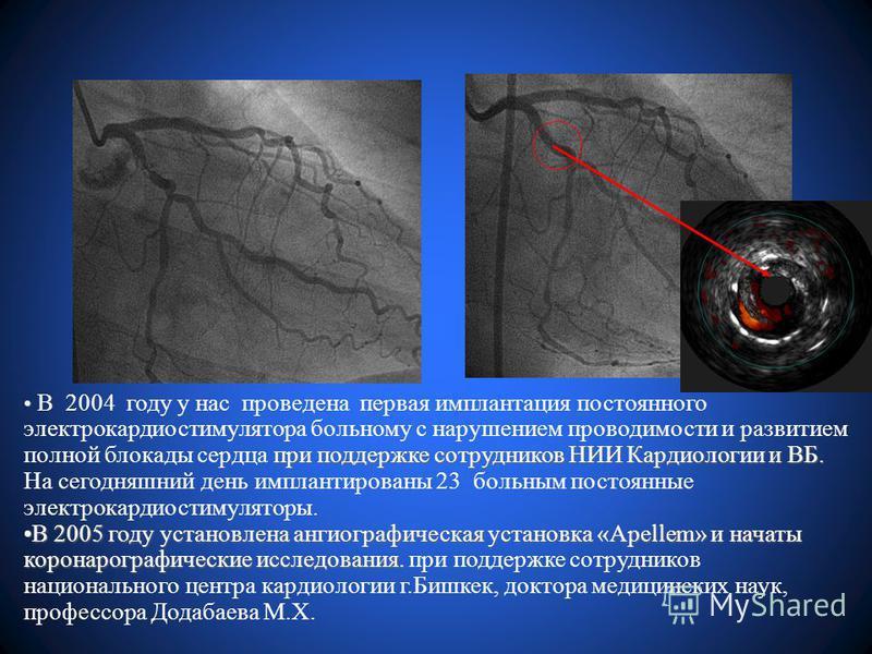 при поддержке сотрудников НИИ Кардиологии и ВБ. В 2004 году у нас проведена первая имплантация постоянного электрокардиостимулятора больному с нарушением проводимости и развитием полной блокады сердца при поддержке сотрудников НИИ Кардиологии и ВБ. Н