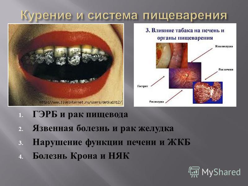 1. ГЭРБ и рак пищевода 2. Язвенная болезнь и рак желудка 3. Нарушение функции печени и ЖКБ 4. Болезнь Крона и НЯК