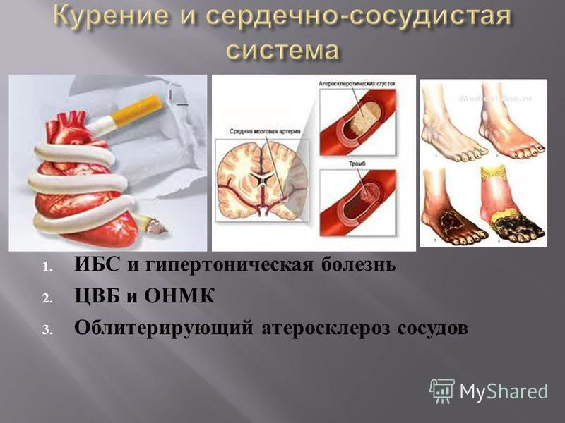 1. ИБС и гипертоническая болезнь 2. ЦВБ и ОНМК 3. Облитерирующий атеросклероз сосудов