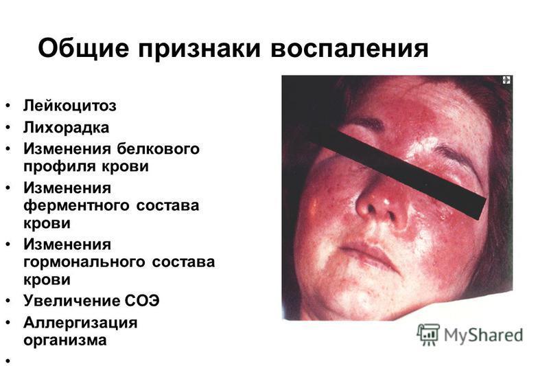 Общие признаки воспаления Лейкоцитоз Лихорадка Изменения белкового профиля крови Изменения ферментного состава крови Изменения гормонального состава крови Увеличение СОЭ Аллергизация организма
